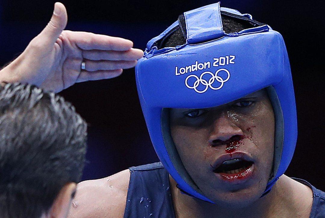 Pas zamiast olimpijskiego medalu. Nowa obsesja Huntera